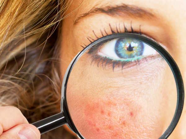 Как избавиться от акне на лице в домашних условиях — 5 методов