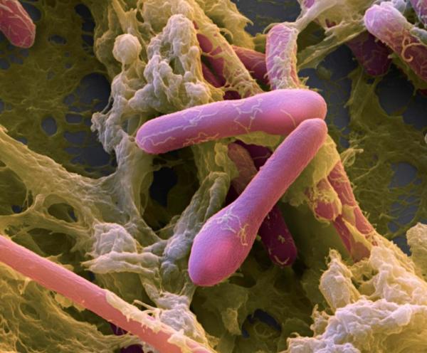 Бактерии Клостридии ботулинум