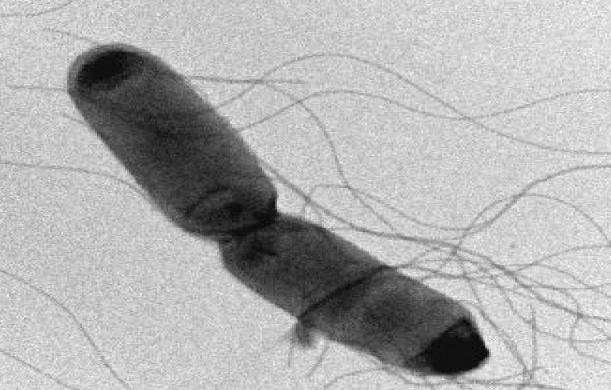 Пищевые отравления микробного происхождения:чем характеризуются