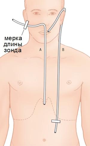 Измерение длины зонда для промывания желудка