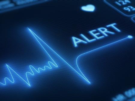 Сбои в работе сердца на мониторе