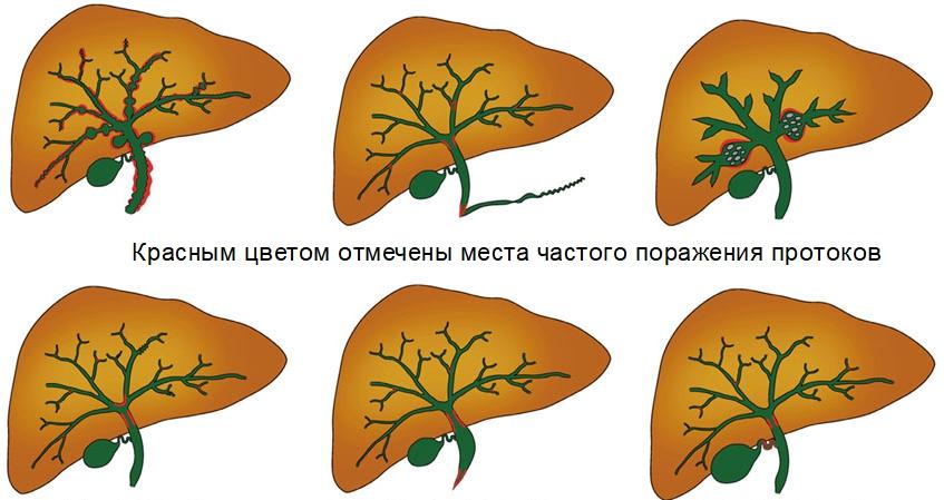 Холангит на схематичном рисунке