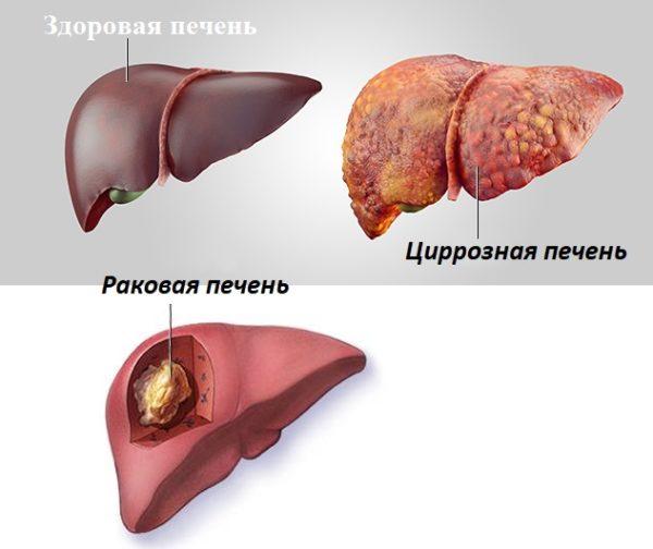 Циррозная и раковая печень