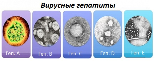 Гепатит разных типов