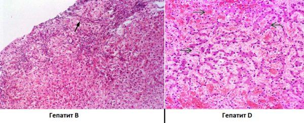 Гепатит типа В и D