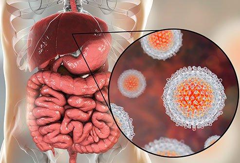 Печёночный вирус типа А