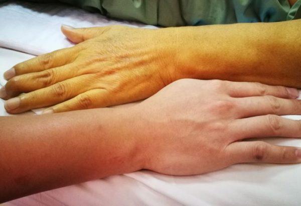 Желтушный окрас кожи