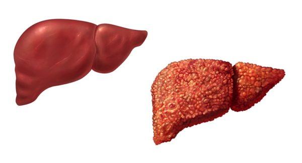 Вирус гепатита печени