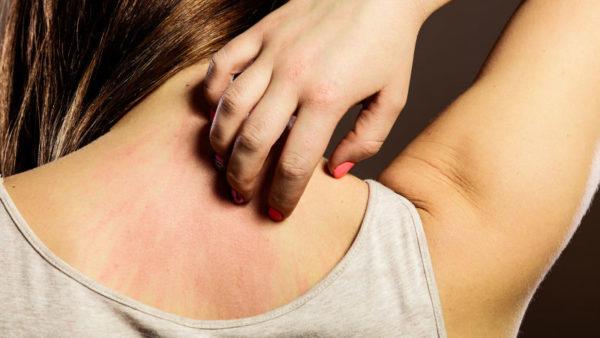 Расчёсывание сыпи на коже