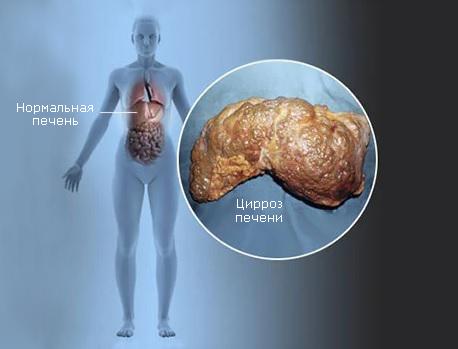 Цирроз печени человека