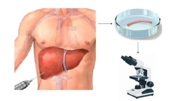 Биопсия печени человека