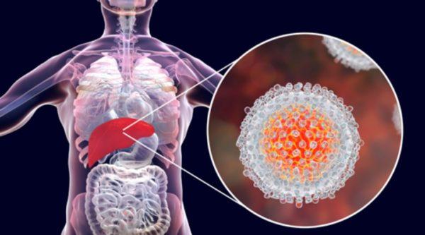 Гепатит хронического вида