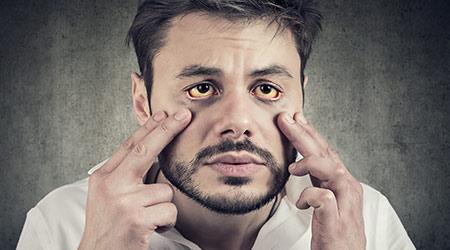 Гепатит у мужчины