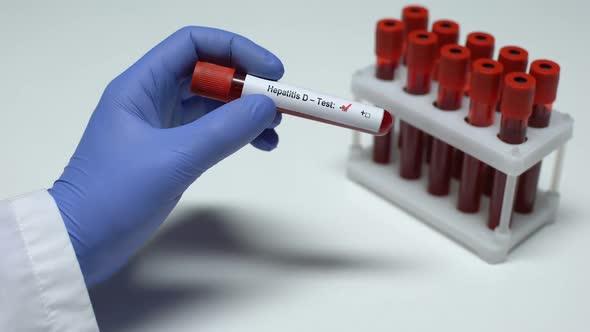Анализ крови на гепатит D