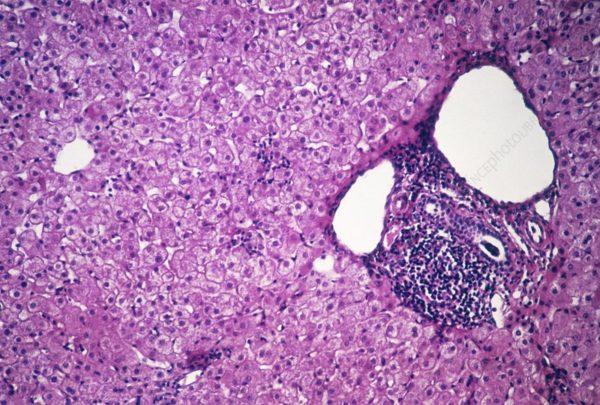 Хронический персистирующий гепатит