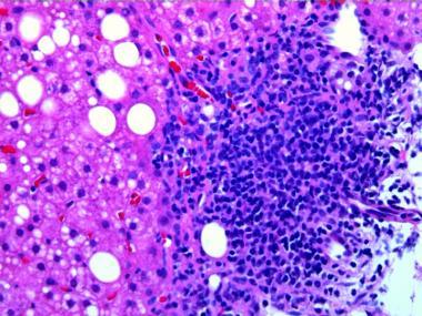 Обострение персистирующего гепатита