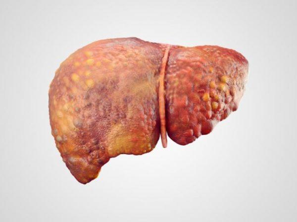 Заражённая гепатитом печень