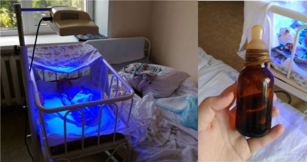 Лечение желтушки в стационаре