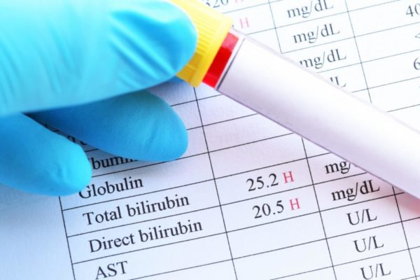 Проверка билирубина в крови