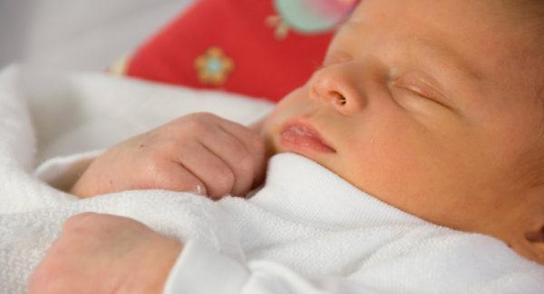 Неонатальная желтуха у младенца
