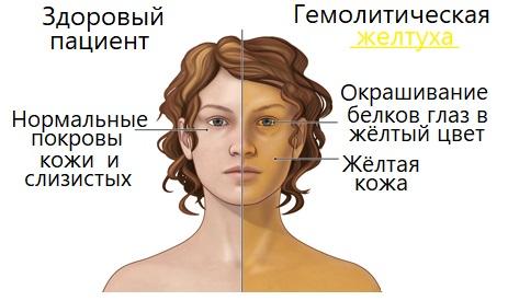 Желтуха гемолитического типа
