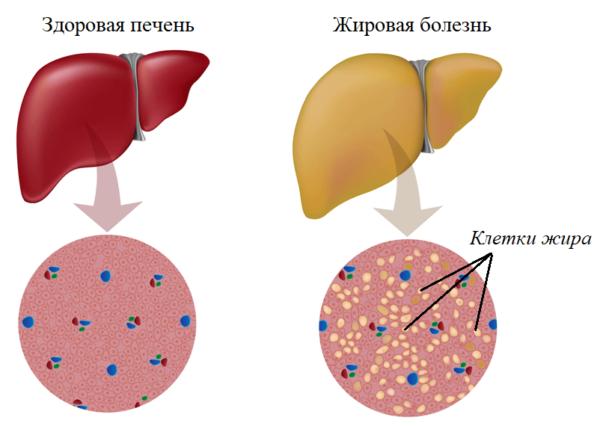 Жировые клетки в печени