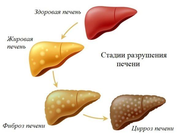 Печёночные болезни