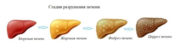Больная печень пациента