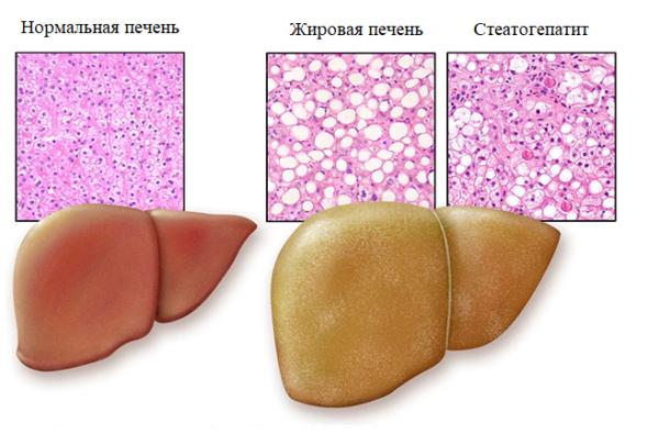 Жировая печень человека