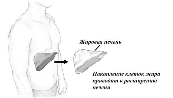 Неалкогольное ожирение печени