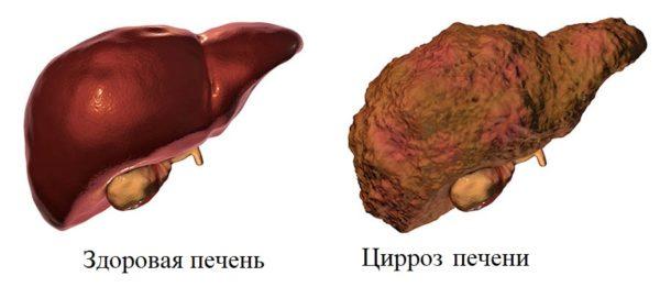 Белковая болезнь печени