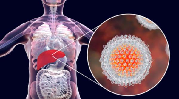 Хронический гепатит печени